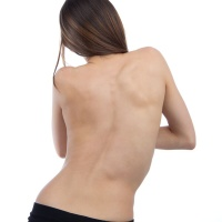 Scoliosis and Postural Distortion Image