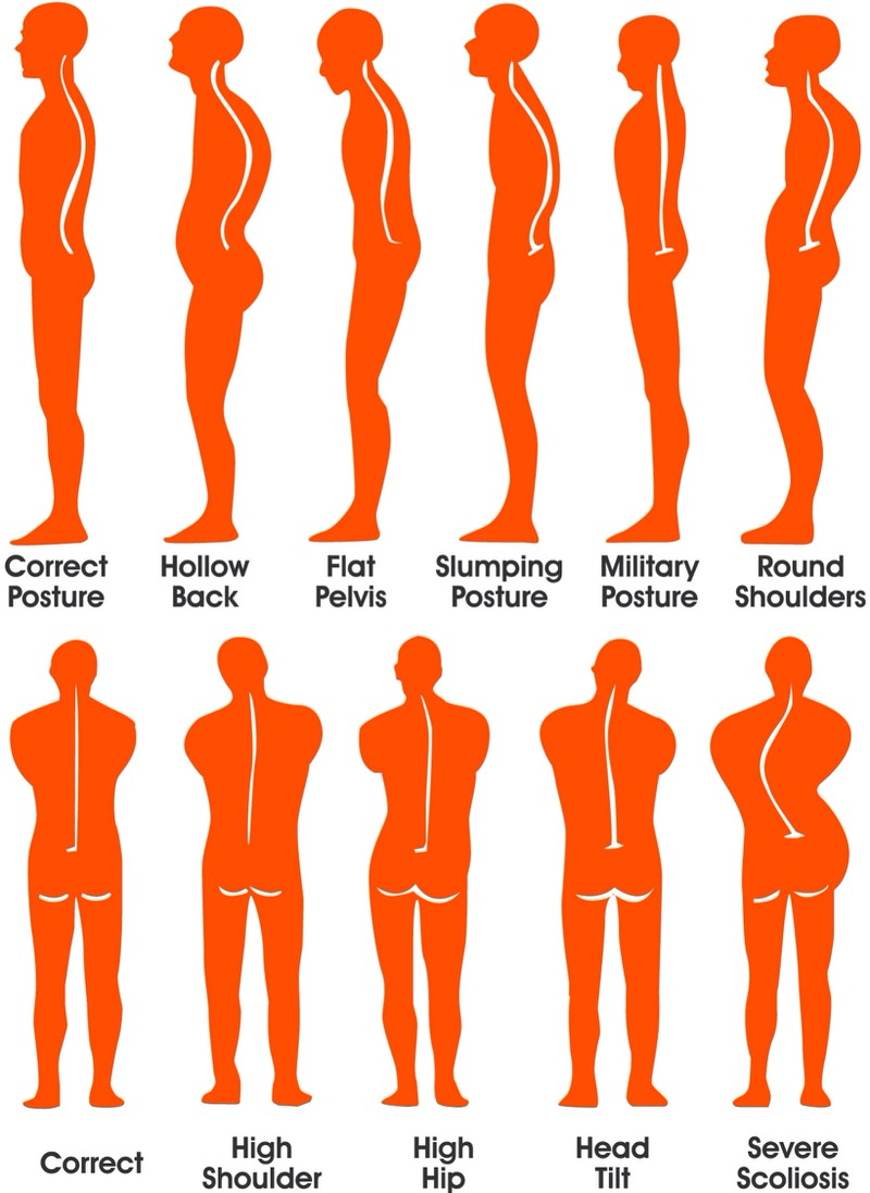 Posture Correction and Ergonomics